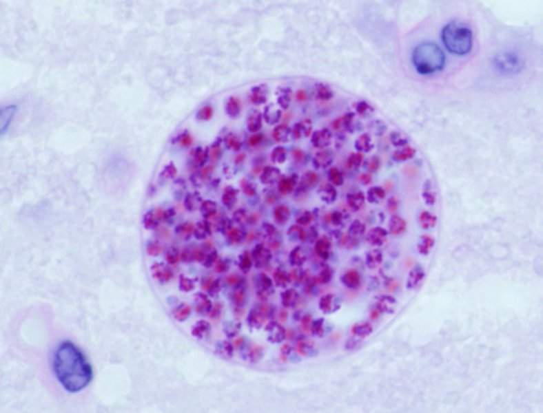 Microscopic view of Toxoplasma gondii