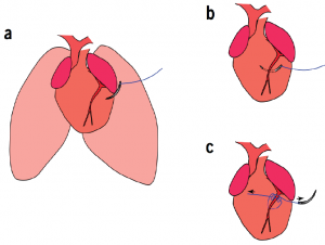 To establish how the neonatal mouse heart responds to ischemic injury, Cohen and her team permanently ligated the left anterior descending coronary artery of 1-day-old mice.