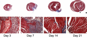 To assess the regenerative capacity of the neonatal mouse heart after ischemic injury, histological analyses were performed after coronary artery ligation. By 21 days after myocardial infarction, there was little evidence of fibrosis when using Masson's trichrome staining.